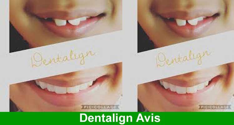 Dentalign Avis 2021.